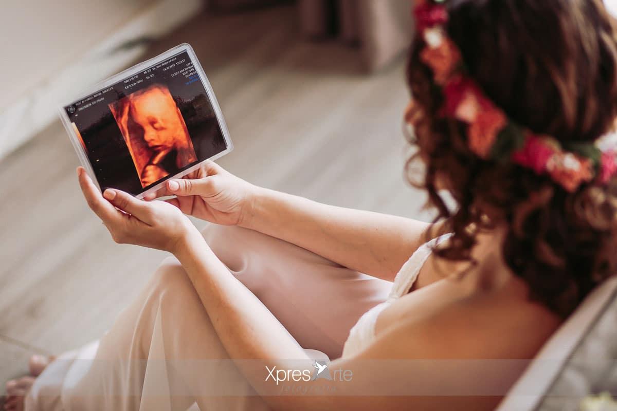 ecografia de embarazada en Sevilla